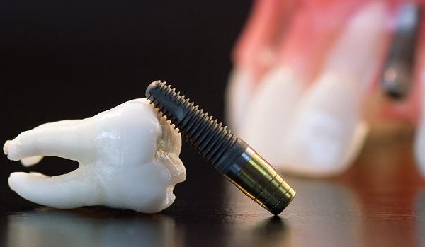 nên trồng răng implant ở đâu