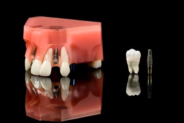 những loại răng implant phổ biến 2