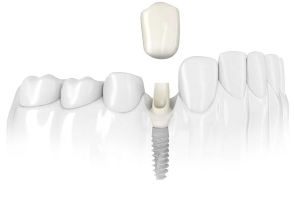 thời điểm nên cấy implant sau nhổ răng