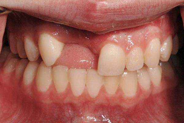thời điểm nên cấy implant sau nhổ răng 2