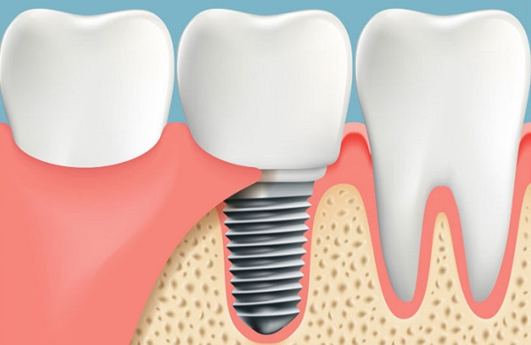 trồng răng hàm có đau không