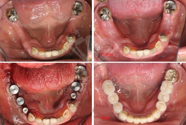 trồng răng implant 6