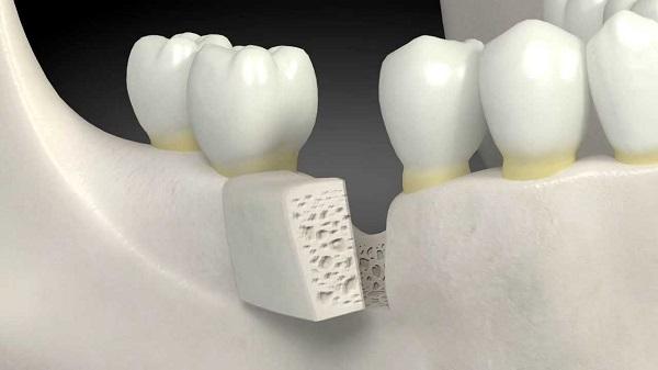 vì sao nên ghép xương răng 4