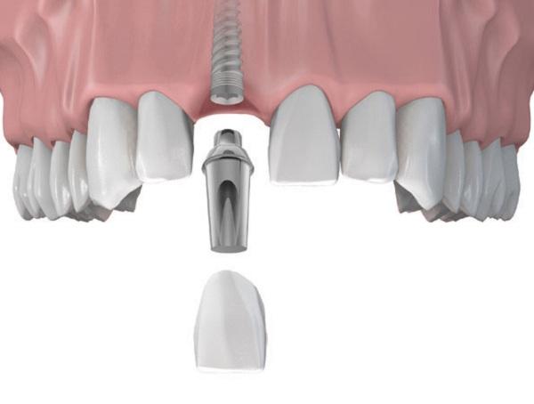 cấy ghép răng implant 2