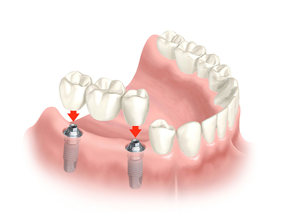 cấy ghép răng implant 3