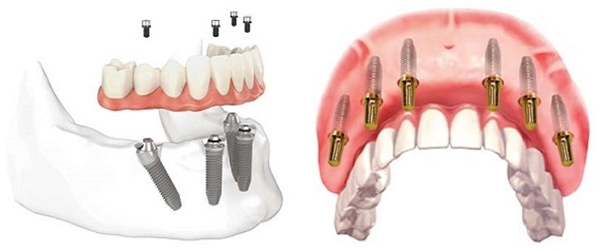 cấy ghép răng implant 4