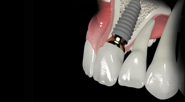 trồng răng hàm sứ