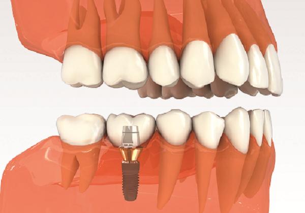 mất 1 răng có thể trồng răng bằng cách nào