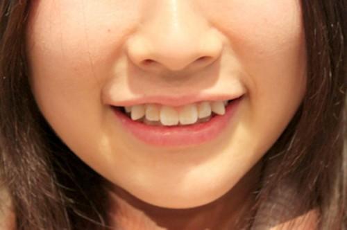 trồng răng khểnh có đau không
