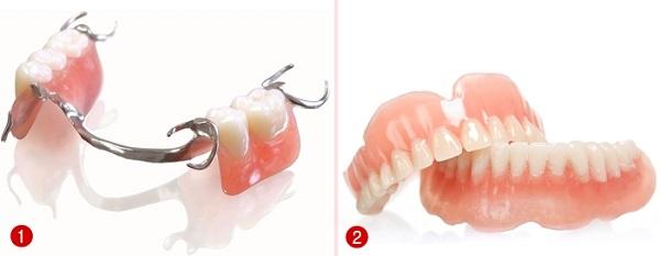 trồng răng giả tháo lắp 2