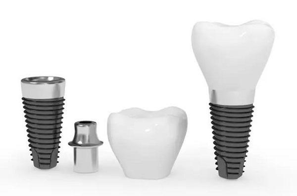 trồng răng implant trả góp 4