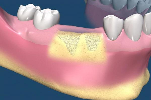 trồng răng implant 2