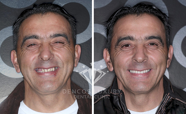 Cắm răng Implant cho người cao tuổi 1