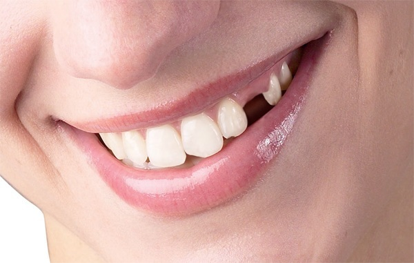 Có nên trồng răng sứ 1