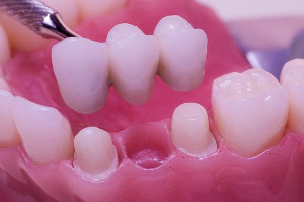 Có nên trồng răng sứ 2
