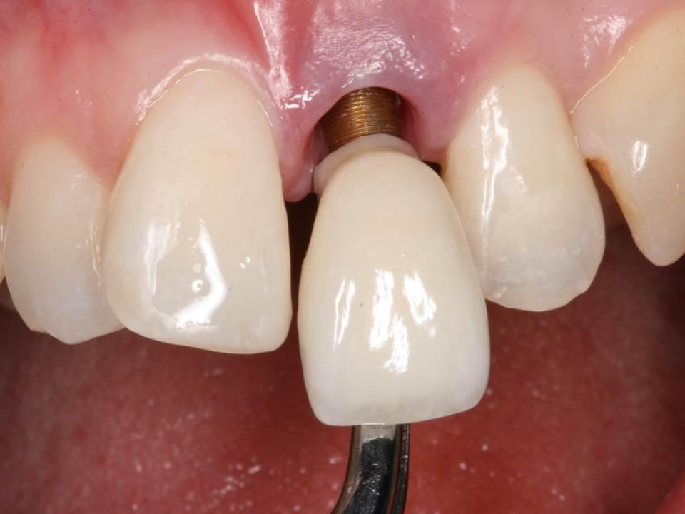 Độ tuổi trồng răng Implant