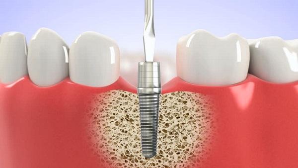 Độ tuổi trồng răng Implant 1