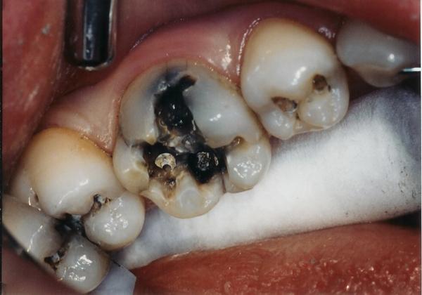 Nhổ răng hàm có đau không?