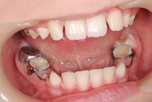 Răng không bị xô lệch sau khi mất răng 1