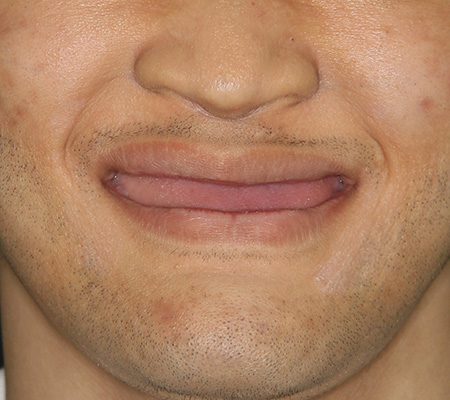 Trồng răng Implant1