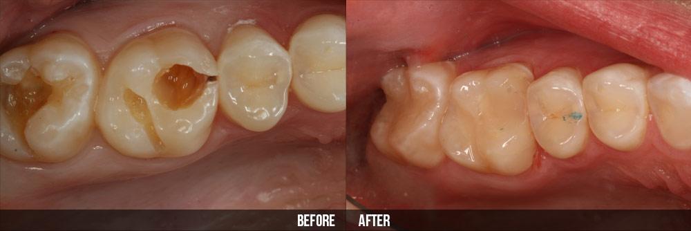 có nên nhổ răng sâu khi mang thai 3