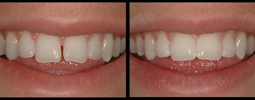 răng thưa và cách khắc phục 2