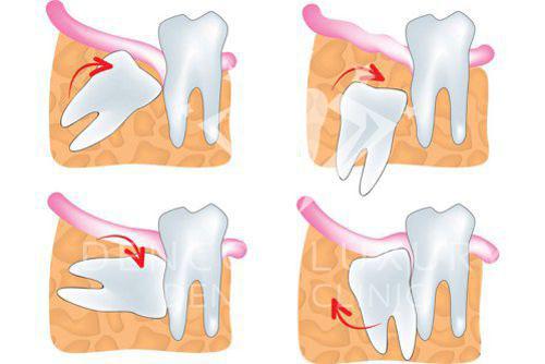nhổ răng số 8 bị sâu 2