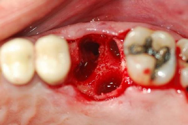 nhổ răng an toàn 2