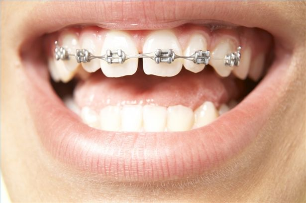 răng thưa và cách khắc phục 3
