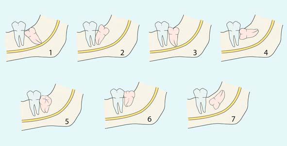 có nên nhổ răng số 8 không 2