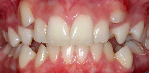 Có nên nhổ răng thừa không