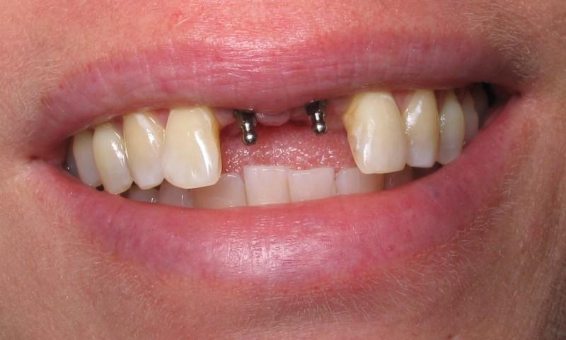 Nhổ răng cửa có đau không 2