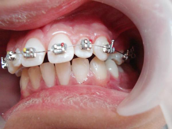 Răng hô phải làm sao 2