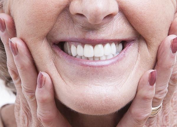 cắm răng implant toàn hàm