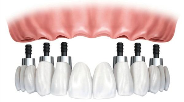 cắm răng implant toàn hàm 2
