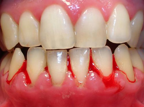 răng cửa bị lung lay
