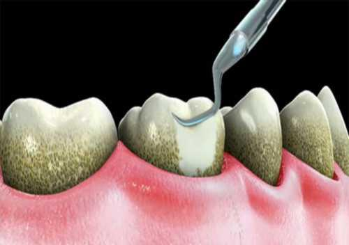 răng lung lay phải làm sao 4