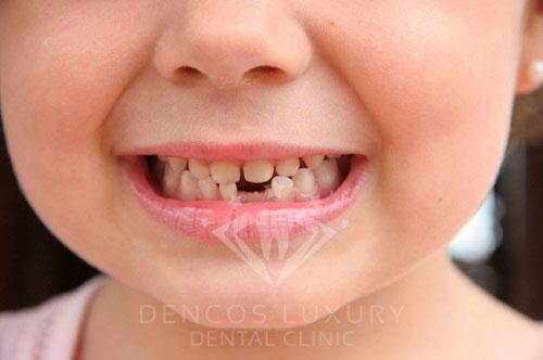 nhổ răng cho bé