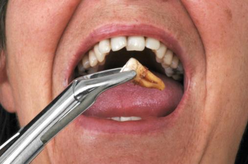 nhổ răng sâu hết bao nhiêu tiền