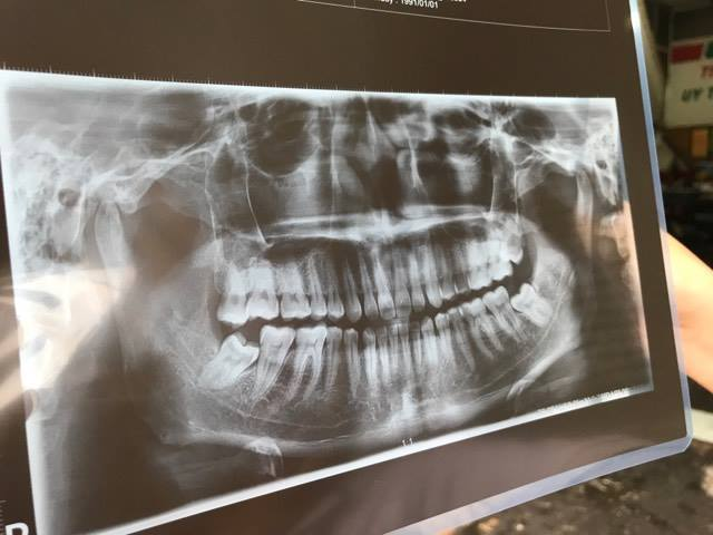 nhổ răng số 8 có đau lắm không 2