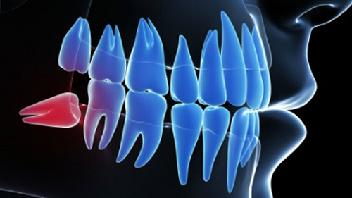 nhổ răng số 8 có đau lắm không