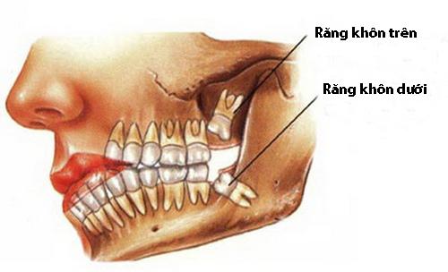nhổ răng số 8 hàm dưới có nguy hiểm không 2