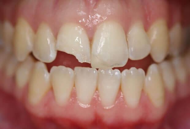 cách-khắc-phục-răng-bị-mẻ
