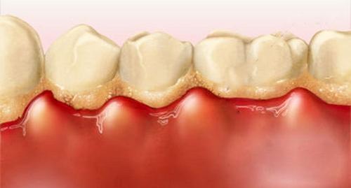 răng sâu bị lung lay 2