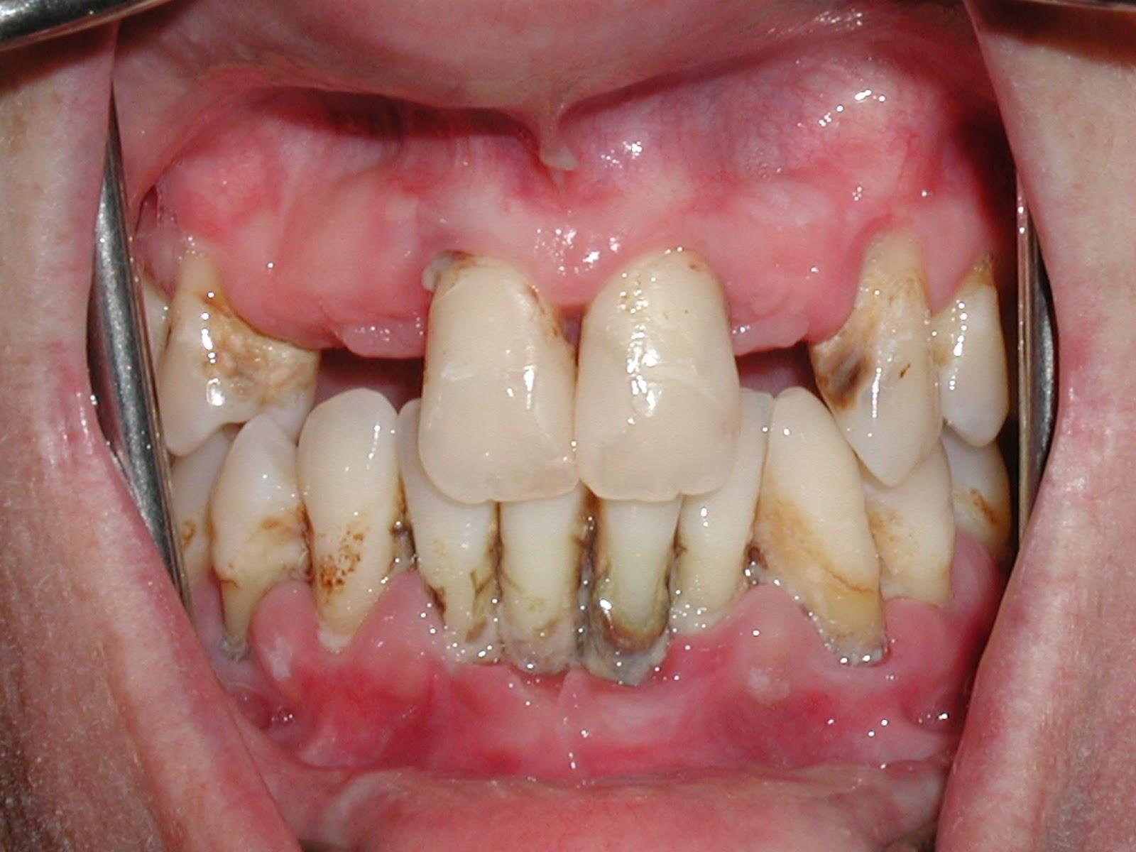 răng lung lay phải làm sao 2