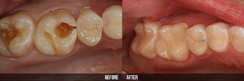 răng sâu bị lung lay 3