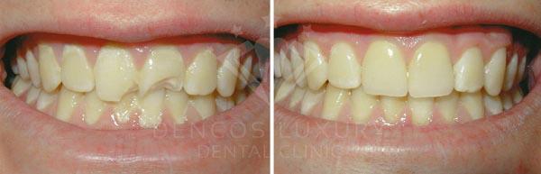phục hồi răng cửa bị mẻ 2