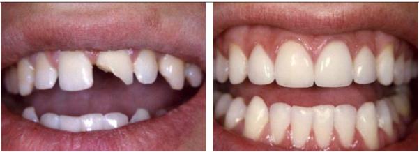 phục hồi răng cửa bị mẻ 3