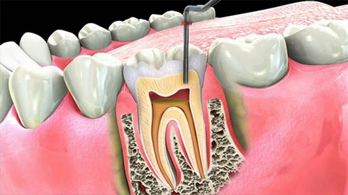 răng cấm bị lung lay 2
