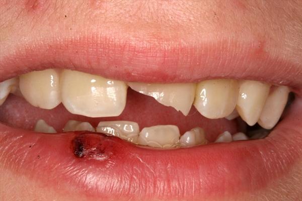 phục hồi răng cửa bị mẻ